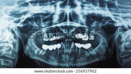Medical X ray imaging of human teeth