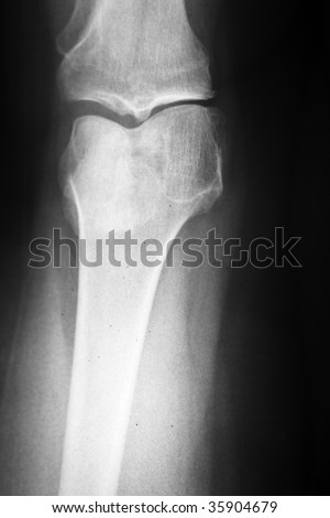Medical x-ray of a damaged knee in vertical format
