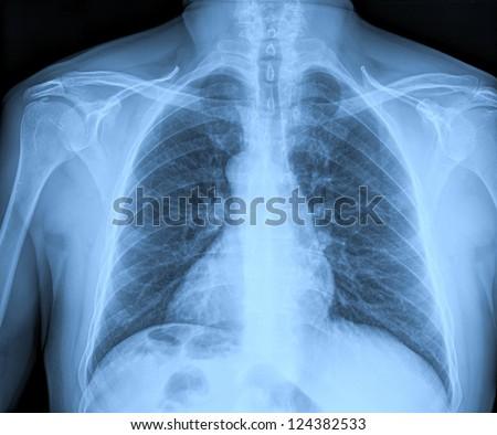 Medical X-rays