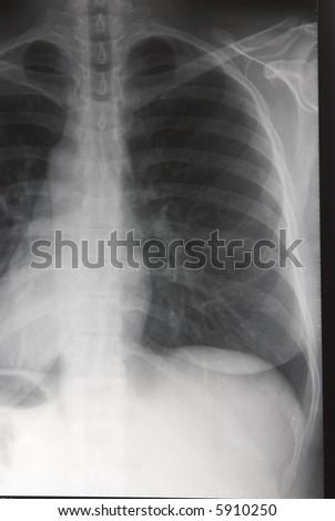 Medical Xray bones image background series 01