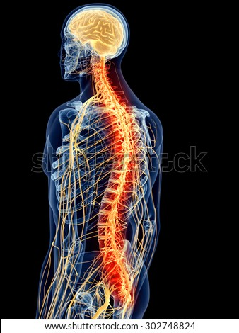 medically accurate illustration - painful spine