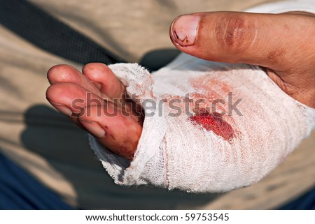 Medicine bandage with blood on human injury hand after accident with chainsaw