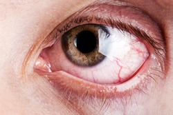 Medicine healthcare blood capillary human eye pain