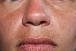 Melasma, also called mask of pregnancy, is a skin condition that causes dark patches on the upper lip, cheeks, and forehead. Melasma is common during pregnancy or spending too much time in the sun.