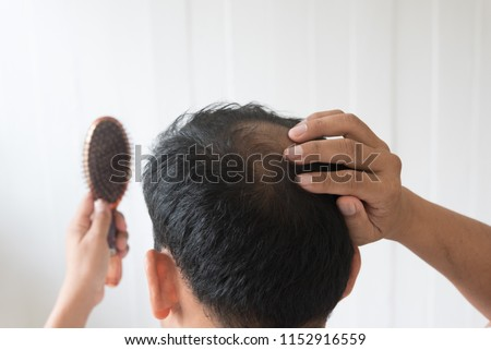 Men are worried about hair loss problem.