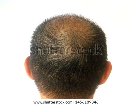 Men have black and white hair .. thin hair, bald head back ...See the scalp... White background