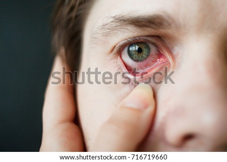 Mens red eye close-up, fatigue, problems with blood vessels #716719660