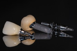 Metal-ceramic crown on the implant. Rejection of the implant. Screw-retained ceramic crown. Implant screw. Close up.