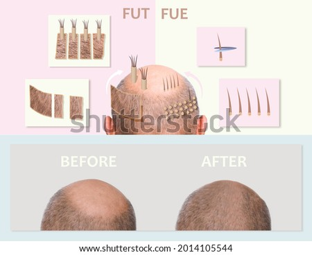 Methods of hair transplantation FUT and FUE fue with transplant as infographic element of illustration. Human alopecia or hair loss problem on adult senior or mature man. Before and after concept Stock fotó ©