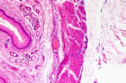 micrograph of medical science stratified squamous epithelium tissue cell