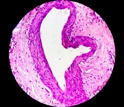 Microscopic image of histological slide, histopathology