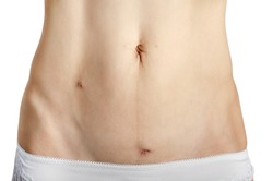 Middle age caucasian female shows her Healing  scars after Laparoscopic Appendix Removal Surgery. White background