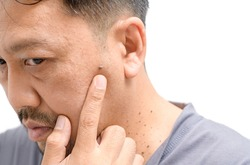 Middle-aged asian man worry about big skin tags or Acrochordon on face isolated on white background, Health care concept