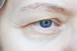 middle aged female's eye with drooping eyelid. Ptosis is a drooping of the upper eyelid, lazy eye. Cosmetology and facial concept, first wrinkles, closeup