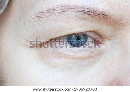 middle aged female's eye with drooping eyelid. Ptosis is a drooping of the upper eyelid, lazy eye. Cosmetology and facial concept, first wrinkles, closeup ストックフォト ©