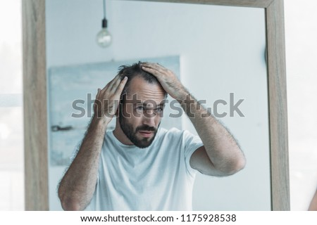 middle aged man with alopecia looking at mirror, hair loss concept