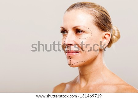 middle aged woman getting ready for plastic surgery