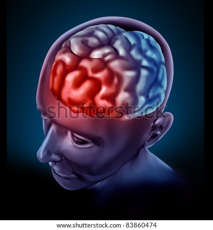 Migraine headache pain represented by a human brain with a red highlight showing the cognitive neurological disease that inflicts many patients.