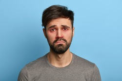 Miserable displeased man has sick look, red swollen eyes, smirks face, suffers from conjunctivitis, seasonal allergy, poses against blue background. People, disease, health problems concept.