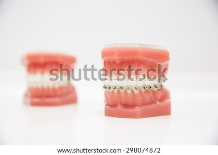 Model of human jaw with wire braces attached. Dental and orthodontic office presentation tool, isolated on white background.   #298074872