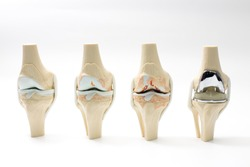 model of knee joint showing multiple stages of knee osteoarthritis and total knee replacement. on white background