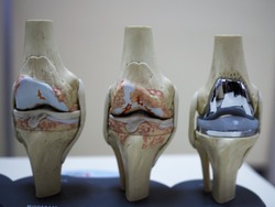 model of knee joint showing multiple stages of knee osteoarthritis and total knee replacement or arthroplasty.