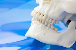 Model of retrognathism. Jawbones with maxillary and mandibular dentition and lower jaw set further back than upper jaw on blue background