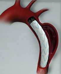 model of thoracic endovascular aortic repair (tevar) for people education