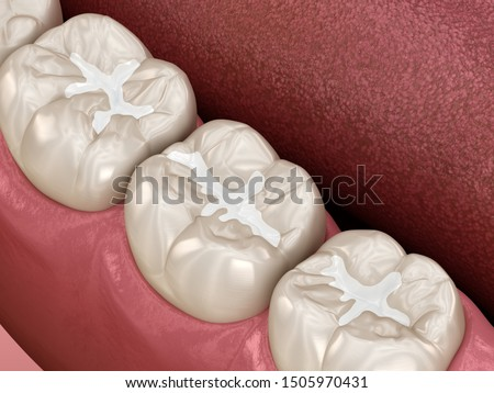 Molar Fissure dental fillings, Medically accurate 3D illustration of dental concept Photo stock ©
