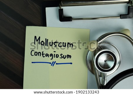 Photo of  Molluscum Contagiosum write on a paperwork isolated on Wooden Table.