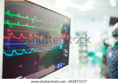 Monitor heart rate for surgery in operate room. #682873237