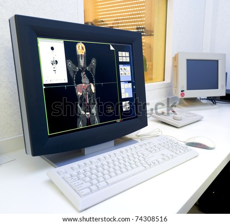 monitor with an image of an PET/CT scan