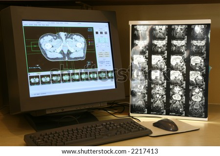 Monitoring human scan - stock photo