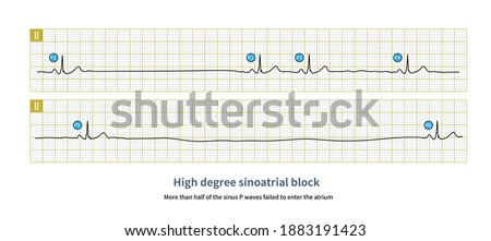 More than half of the sinus P waves failed to enter the atrium in high degree sinoatrial block, and long P-P interval appeared in ECG. Stock fotó ©