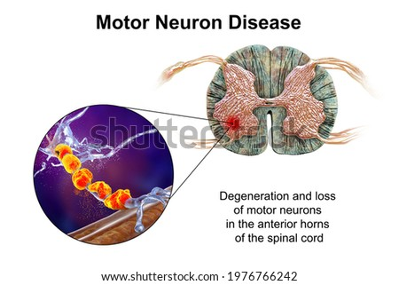 Motor neuron diseases, 3D illustration showing degeneration of motor neurons in anterior horns of spinal cord. Amyotrophic lateral sclerosis and other motor neuron disorders