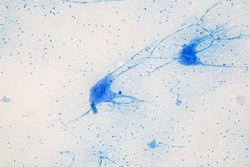 Motor Neuron under the microscope in Lab.