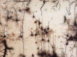 Mouse brain section stained with the Golgi stain, a 19th century technique that was  widely used until recently -  and occasionally still is.  Neurons and some vessel fragments in the cerebral cortex.