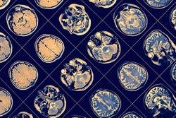 MR image of human brain