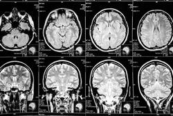 MR scan of female bran. Radiology concept