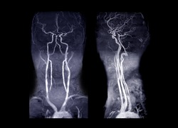 MRA Brain and neck or Magnetic resonance angiography ( MRA )  of cerebral artery and common carotid artery AP and Lateral View  for evaluate them  stenosis  and stroke disease.