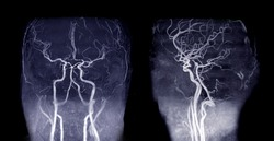 MRA Brain or Magnetic resonance angiography ( MRA )  of cerebral artery and common carotid artery AP and Lateral View  for evaluate them  stenosis  and stroke disease.