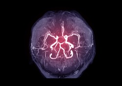 MRA Brain or Magnetic resonance angiography ( MRA )  of cerebral artery in the brain for evaluate them  stenosis  and stroke disease