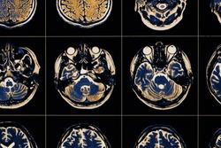 MRI image of human brain close-up.
