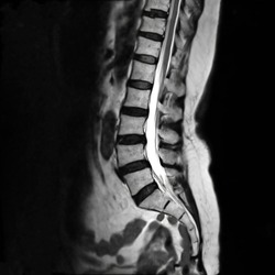 MRI L-S spine or lambar spine sagittal T2 technique for diagnosis spinal cord compression.