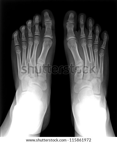 MRI of Foot fingers exposed on x-ray black and white film
