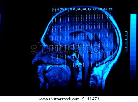 MRI of head.