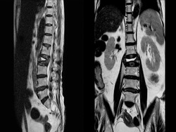 MRI of lumbar spine The study reveals burst fracture of L2 vertebral body, appears as severe decreased disc height and widening of interpedicular distance.