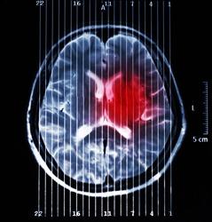 MRI scan : Human brain