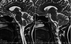 MRI scan of human brain, sagittal view, cerebellum