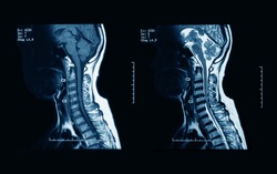 MRI scans of the cervical spine, with and without contrast media, MRI with bilateral C7 nerve root compression, Cervical spondylosis.
